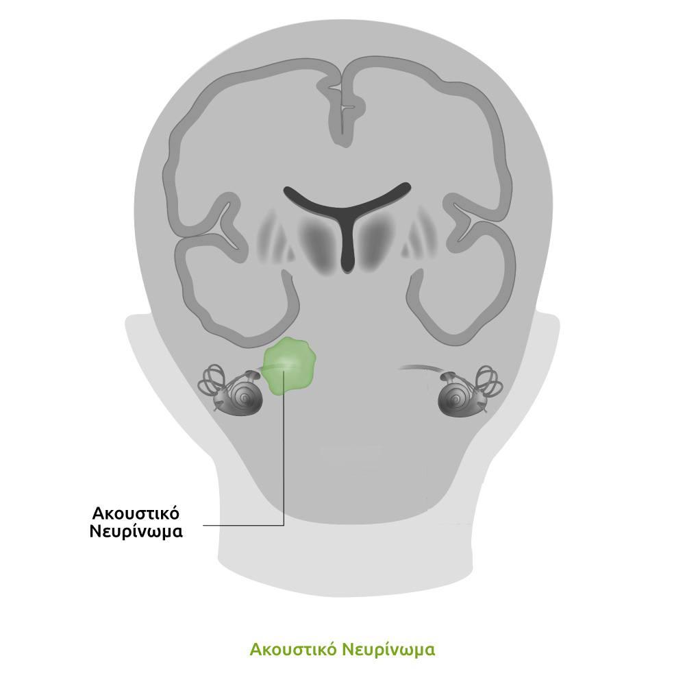 ακουστικό νευρίνωμα, παθήσεις αυτιού, πάθηση αυτιού